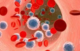 دانلود تحقیق سرطان خون یا لوسمی